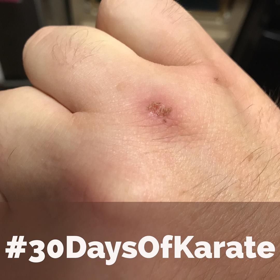 This is actually from yesterday's #30daysofkarate (Day 20). It was spent in the #dojo again and, afterward, I was practicing a few combinations and managed to strike a brick wall. So, yeah… BRICKS DO HIT BACK! LOL. #karate #bushido #budo #practice #injury #booboo #martialarts #suckitupbuttercup @karateculture @erickastengren @jeremylesniak @mish.mash.do @jay_the_sensational @ando_mierzwa